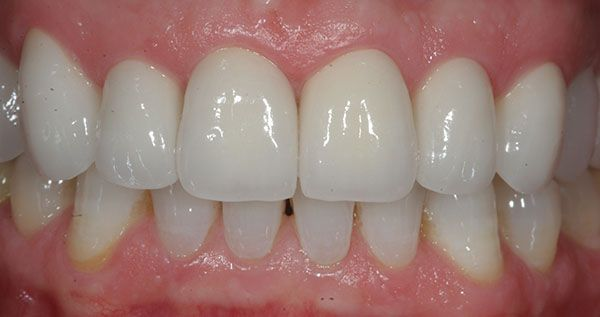 zirconia crowns and bridges outsourcing sevices